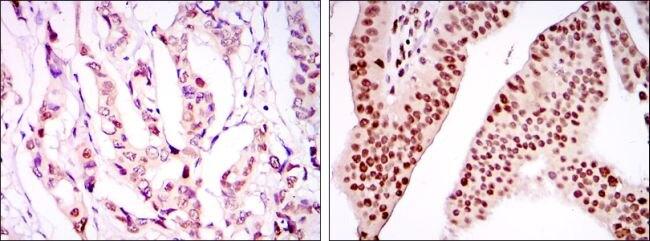 PSIP1 Antibody (MA5-15795) in Immunohistochemistry