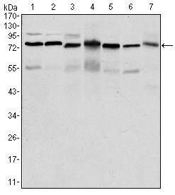 PSIP1 Antibody (MA5-15795) in Western Blot