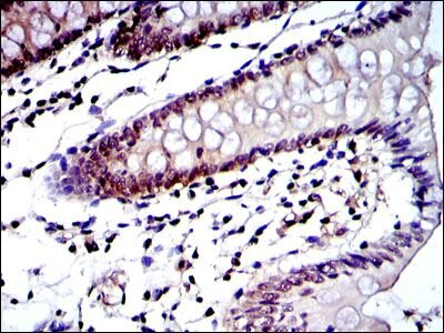 PSMB8 Antibody (MA5-15890) in Immunohistochemistry