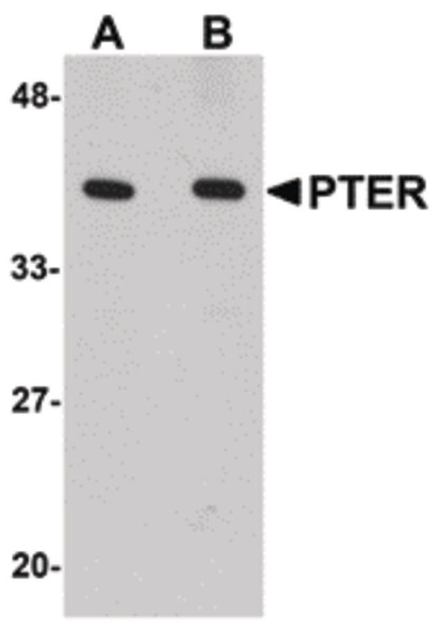 PTER Antibody (PA5-20750) in Western Blot