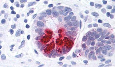 PTGDR Antibody (PA5-34114) in Immunohistochemistry (Paraffin)