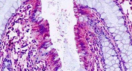 PTGER4 Antibody (PA5-34124) in Immunohistochemistry (Paraffin)