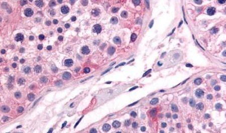 PTGES Antibody (PA5-33001)