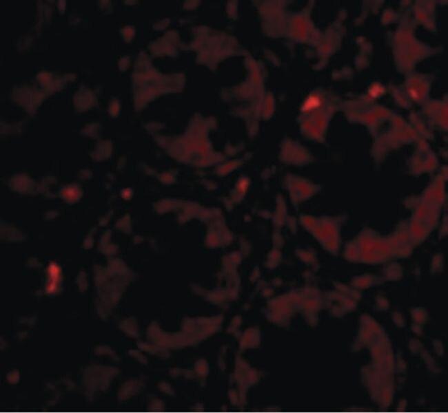 PTK7 Antibody (PA5-20424) in Immunofluorescence