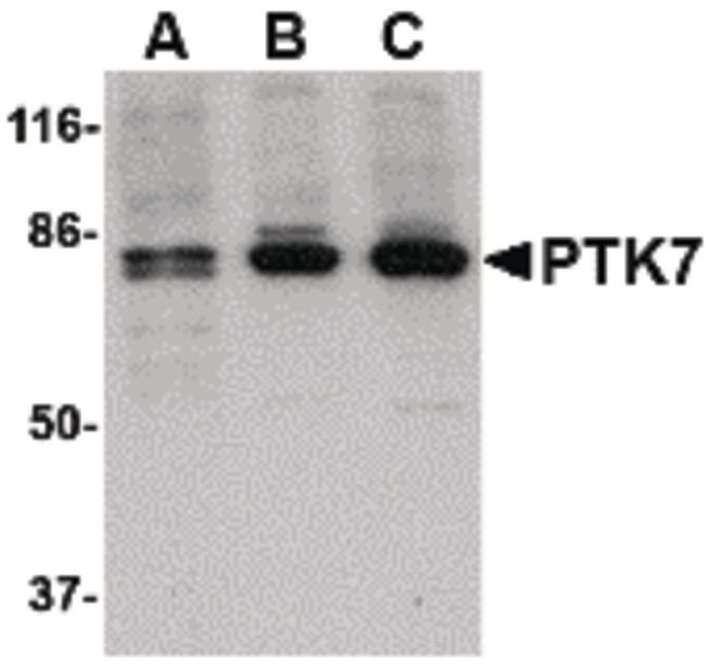 PTK7 Antibody (PA5-20425) in Western Blot