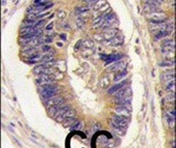 PTPN3 Antibody (PA5-15527) in Immunohistochemistry