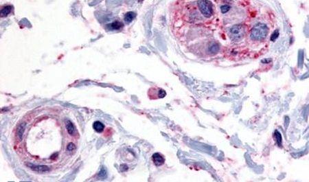 PTPRE Antibody (PA5-34139) in Immunohistochemistry (Paraffin)