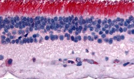 PTPRM Antibody (PA5-33010) in Immunohistochemistry (Paraffin)