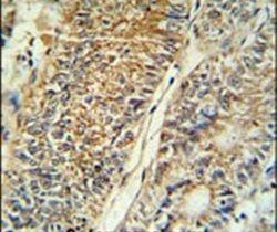 PYCR1 Antibody (PA5-26890) in Immunohistochemistry