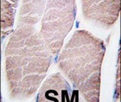PYGM Antibody (PA5-11511)