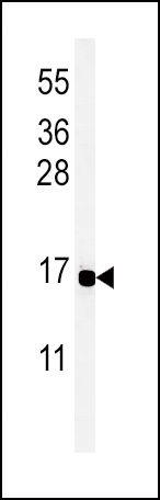PYY Antibody (PA5-25027) in Western Blot