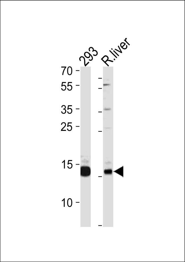 SUMO2/SUMO3 Antibody (PA5-11373) in Western Blot