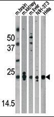 DJ-1 Antibody (PA5-13404) in Western Blot