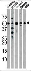 Parkin Antibody (PA5-13420) in Western Blot