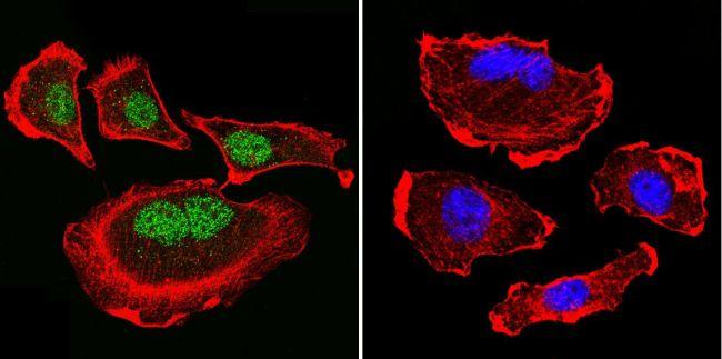 Parvalbumin Antibody (PA1-933) in Immunofluorescence