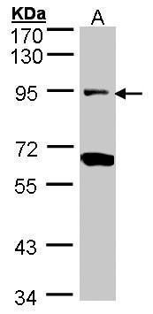 Periostin Antibody (PA5-34641) in Western Blot