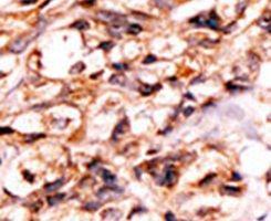 Phospho-BAD (Ser118) Antibody (PA5-12550) in Immunohistochemistry