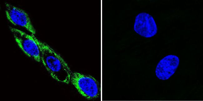 Phospho-CaMKII alpha (Thr286) Antibody (MA1-047) in Immunofluorescence