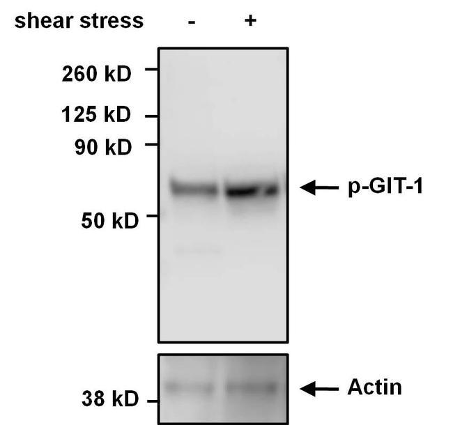 Phospho-GIT1 (Tyr554) Antibody (PA5-12982) in Western Blot