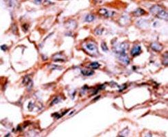Phospho-ErbB4 (Tyr1188) Antibody (PA5-12607) in Immunohistochemistry