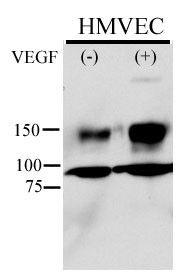 Phospho-VEGF Receptor 2 (Tyr996) Antibody (PA5-12598) in Western Blot
