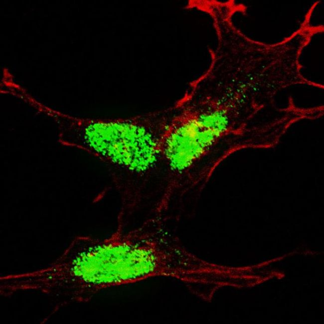 Phospho-KLF4 (Ser245) Antibody (PA5-13081) in Immunofluorescence