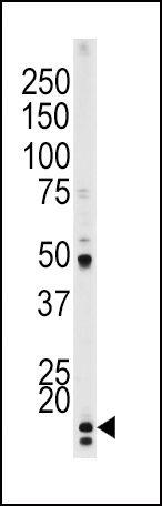 Phospho-p21 (Thr145) Antibody (PA5-12646) in Western Blot