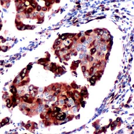 Phospho-S6 (Ser235, Ser236) Antibody (PA5-32580) in Immunohistochemistry