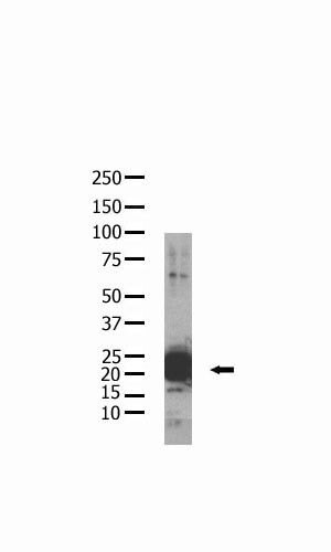 Phospho-BAD (Ser155) Antibody (MA5-11118) in Western Blot