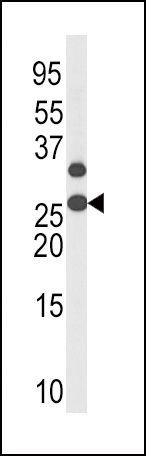 Phospho-p27 Kip1 (Thr187) Antibody (PA5-12651) in Western Blot
