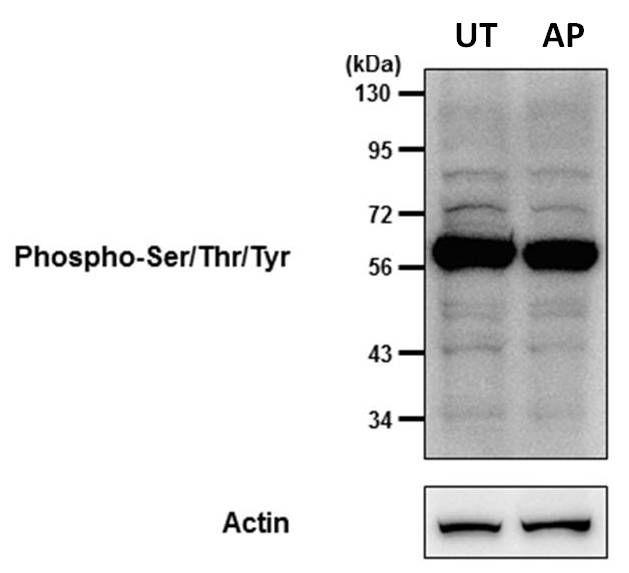 Phosphoserine/threonine/tyrosine Antibody (MA1-38450) in Western Blot