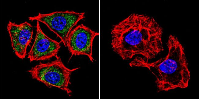 PSEN2 Antibody (MA1-753) in Immunofluorescence