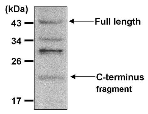 Presenilin 1 Antibody (MA1-752) in Western Blot