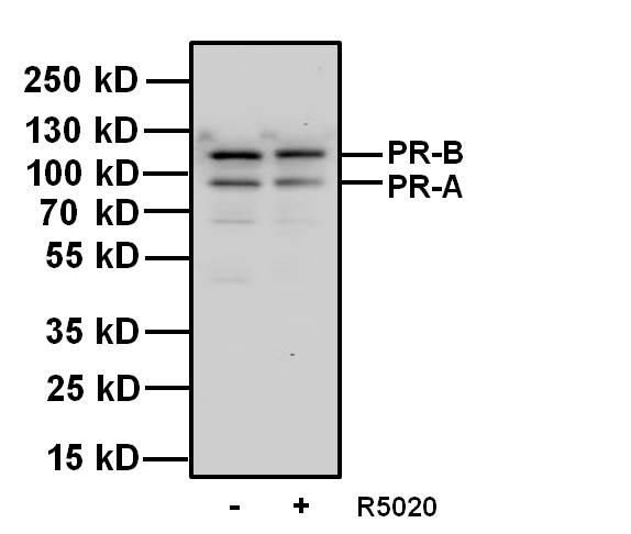Progesterone Receptor Antibody (MA1-411) in Western Blot
