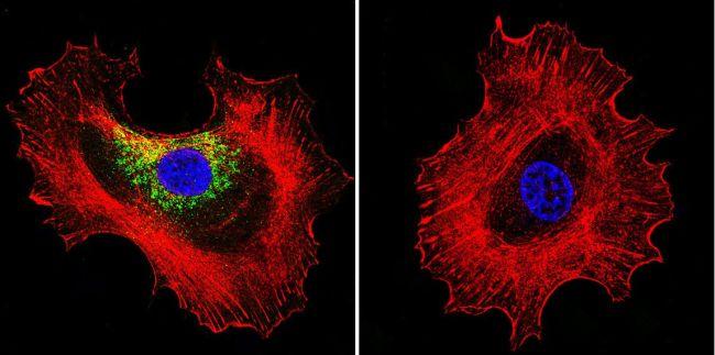Prolactin Receptor Antibody (MA1-610) in Immunofluorescence