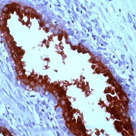 PSA Antibody (PA5-32565)