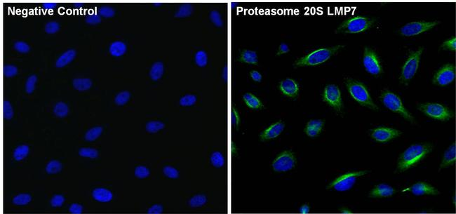 PSMB8 Antibody (PA1-972)