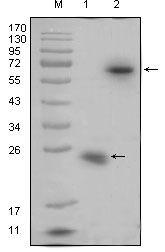 RSPO1 Antibody (MA5-15489) in Western Blot