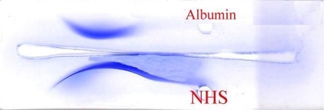 Human Serum Albumin Antibody (R0101-1E)