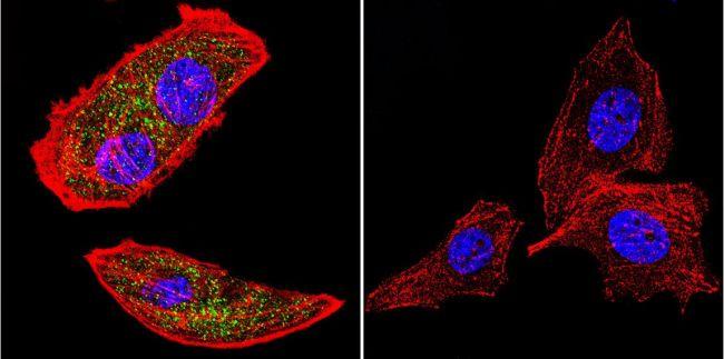 RAB9A Antibody (MA3-067) in Immunofluorescence