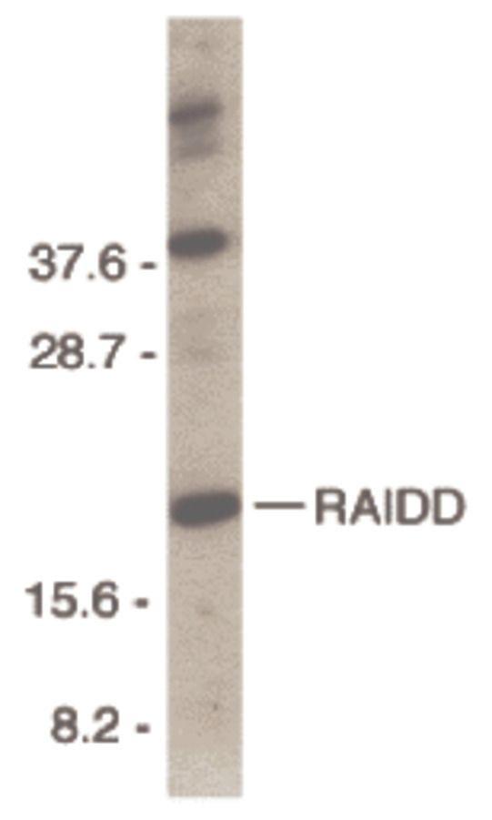 RAIDD Antibody (PA5-19865) in Western Blot