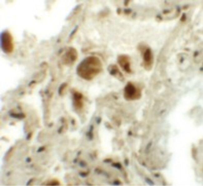 RASSF10 Antibody (PA5-21151)