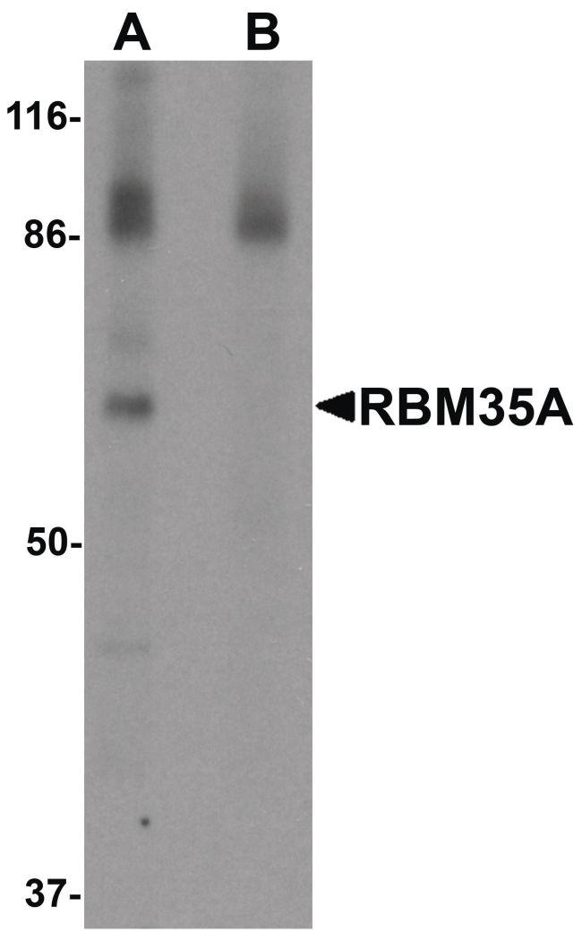ESRP1 Antibody (PA5-21109) in Western Blot