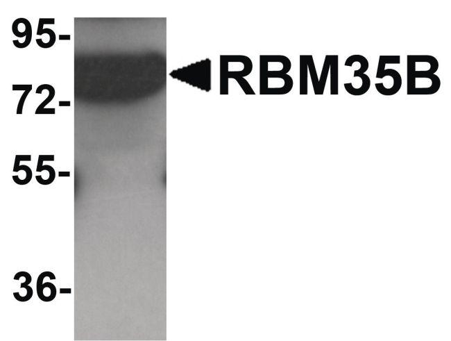 ESRP2 Antibody (PA5-21110) in Western Blot