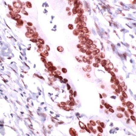 RCC1 Antibody (PA5-32572) in Immunohistochemistry