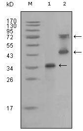 RET Antibody (MA5-15373) in Western Blot