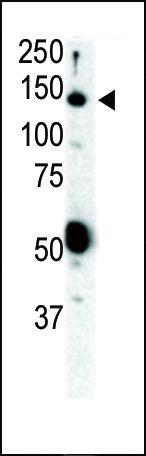 RET Antibody (PA5-14722) in Western Blot