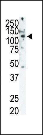 RET Antibody (PA5-14723)