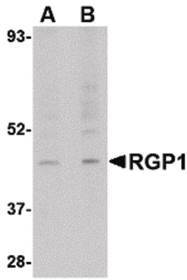 RGP1 Antibody (PA5-20519) in Western Blot