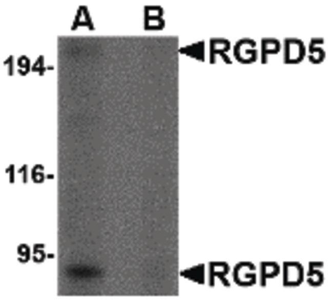 RGPD5 Antibody (PA5-20566)